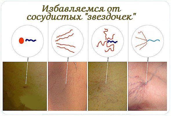 Сосудистые «звездочки» на коже (телеангиоэктазии)